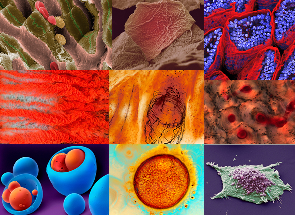 Photoimages of the winning bioimages in the Wellcome Image Awards 2009.